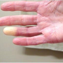 Síndrome de Raynaud o manos frías: condiciones que empeoran en invierno
