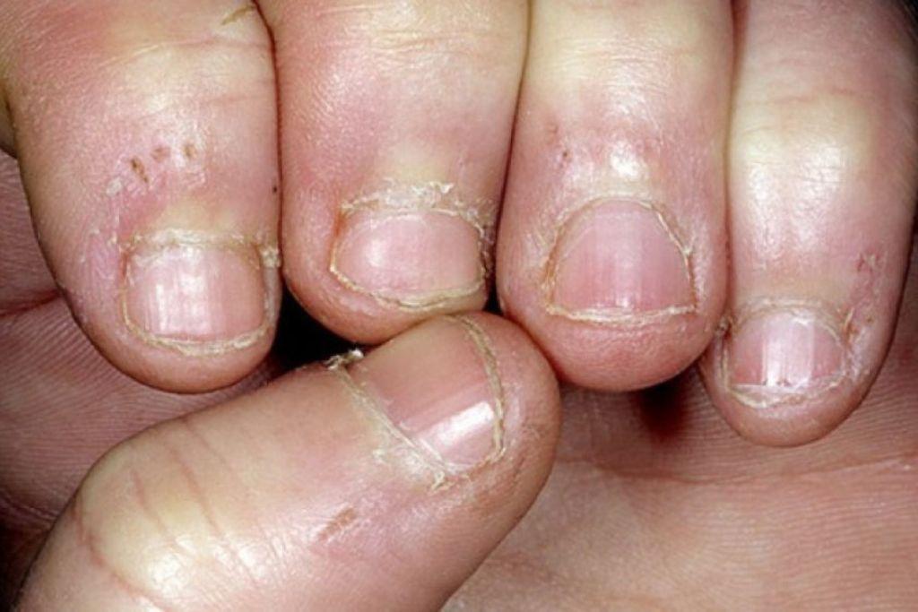 Por qué morderse las uñas y qué puede hacer para evitarlo