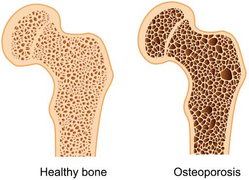 ejercicios para osteoporosis